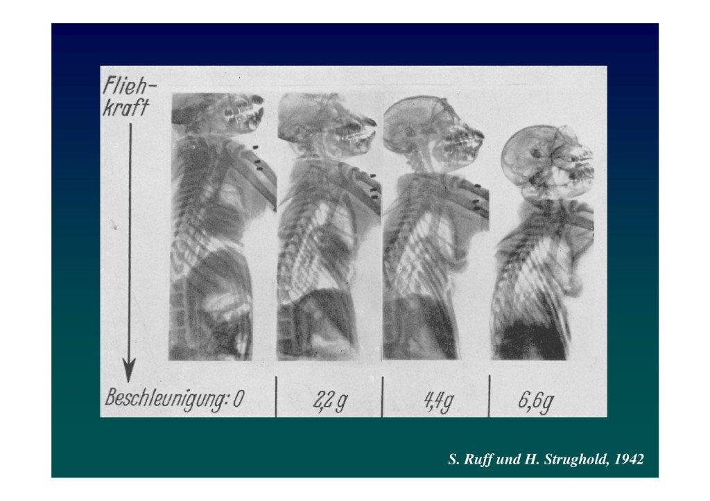 Le voile en voltige aérienne (Dr. Deschamps-Berger-page-014