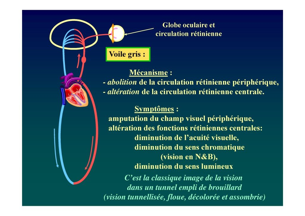 Le voile en voltige aérienne (Dr. Deschamps-Berger-page-022